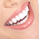 CASABLANCA SMILE - mit weißen Zähnen zum Erfolg...